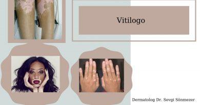 Vitiligo Nedir Cozumu Var Mıdır