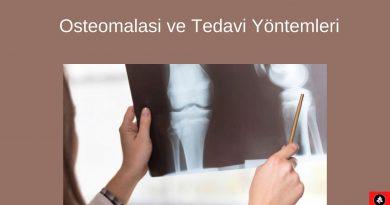 Osteomalasi ve Tedavi Yöntemleri